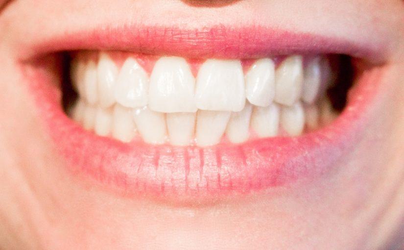 Aktualna technika używana w salonach stomatologii estetycznej zdoła spowodować, że odbierzemy śliczny uśmiech.